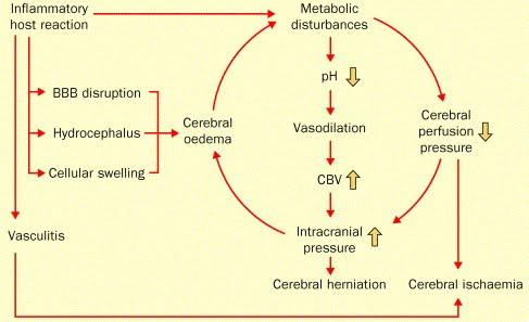 Bacterial Meningitis - Neurobiology Of Disease 07