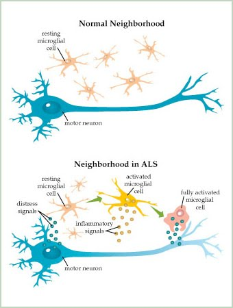 Amyotrophic lateral sclerosis als kelsey fredericks and for What is motor neuron disease caused by