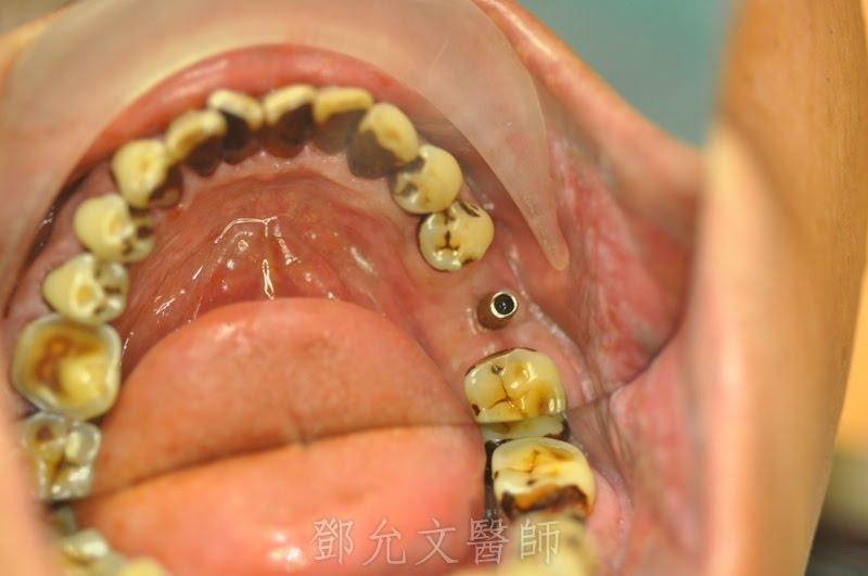 大臼齒牙根斷裂,即拔即種