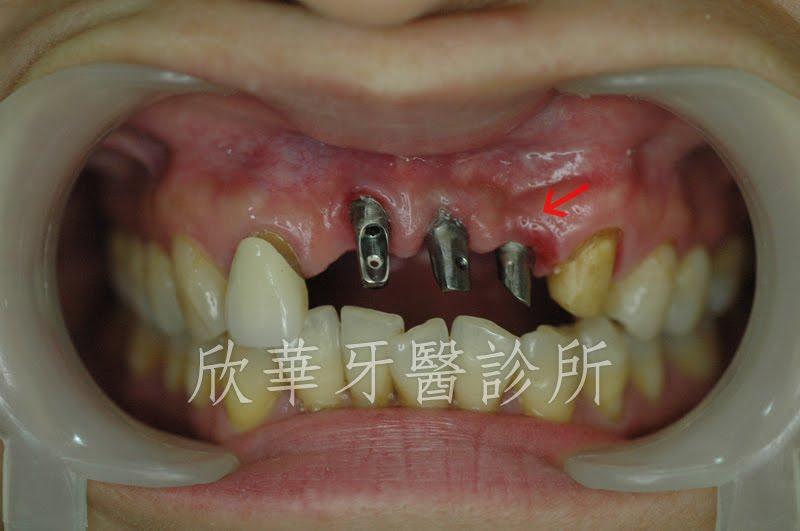 門牙翻瓣補骨併人工植牙手術