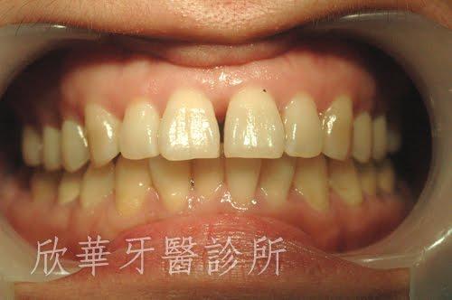 門牙漏縫、門牙有縫