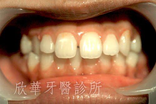 齒列不整齊、牙縫開開