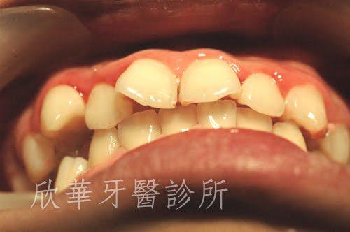 暴牙、牙齒擁擠