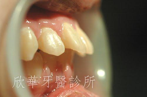 暴牙、牙齒前突