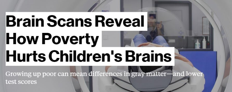 Brain Scans Reveal How Poverty Hurts >> August2015 Diversityconnectionnde