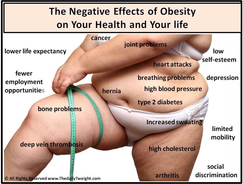 Negative Effects Of Obesity Obesity Epidemic