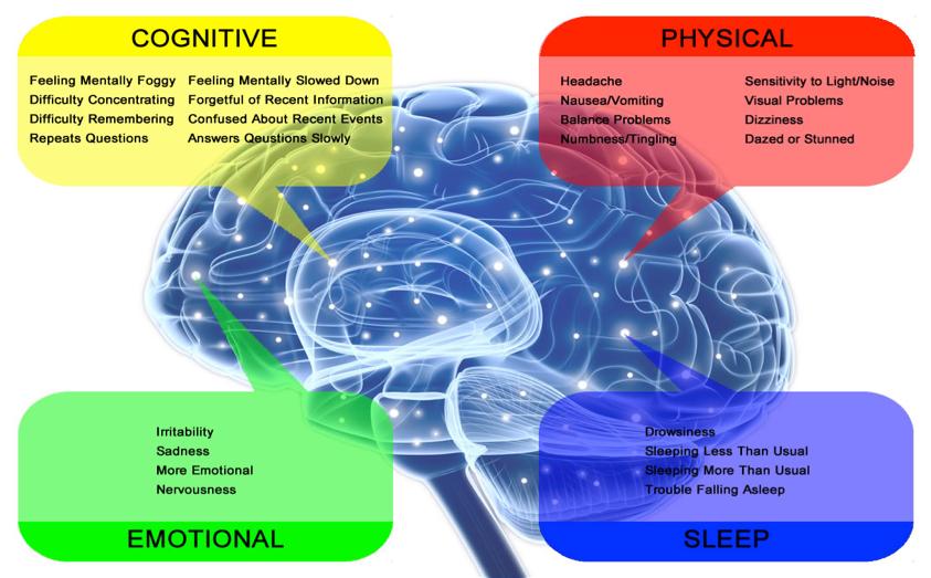 Childhood Concussions Impair Brain >> Multiple Concussions Cause Irreversible Brain Damage
