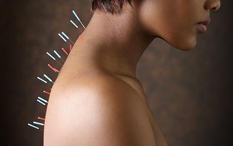 El valor de la acupuntura - info-farmacia
