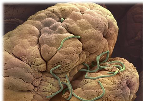 enterobius vermicularis ninos
