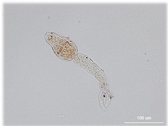 schistosomiasis etimológia