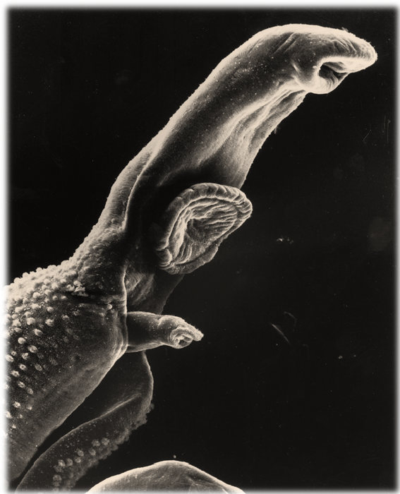 schistosomiasis q es