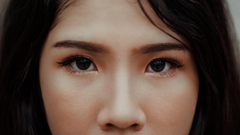 Best cosmetic eyelid surgery Aliso Viejo