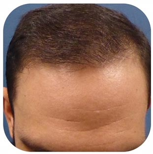 Meshkin Medical Hair Restoration Transplant Clinic