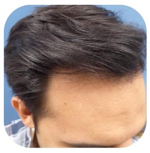 hair transplant Los Angeles
