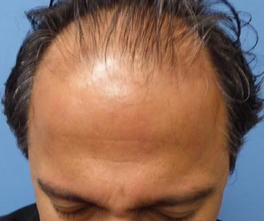 hair transplant Los Angeles Clinic