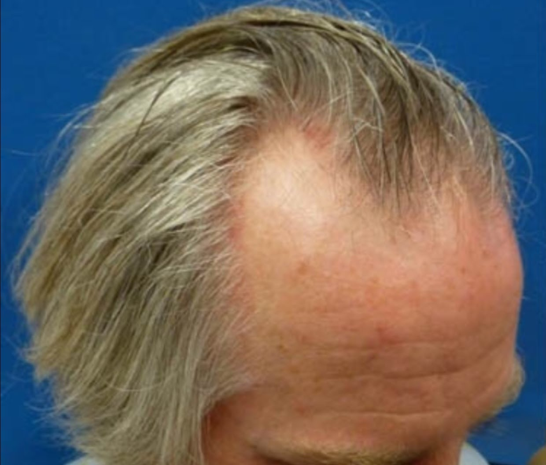 hair transplant Irvine Clinic