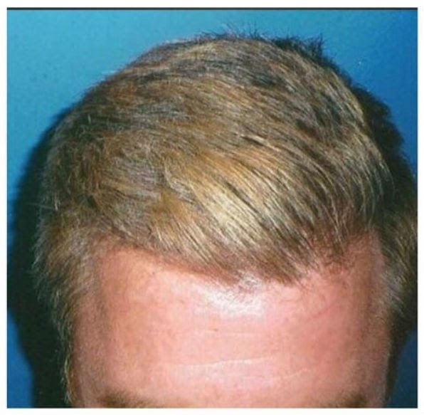 hair transplant Irvine