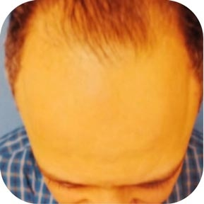 Meshkin Medical Hair Restoration Transplant Clinic