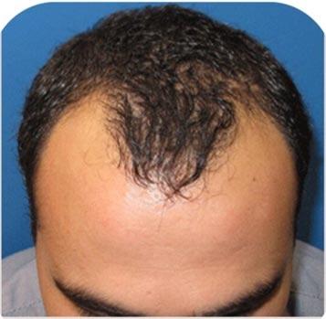 FUE hair transplant Irvine