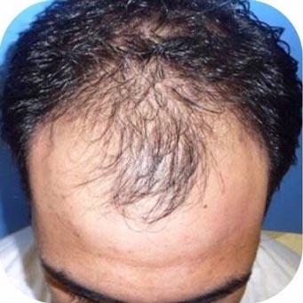 hair restoration Los Angeles