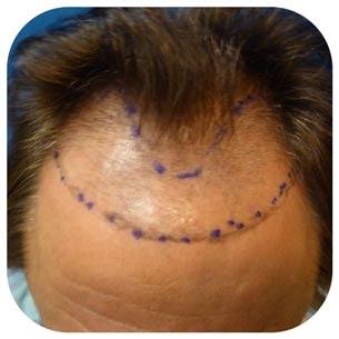 hair transplant newport beach