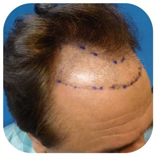 hair transplant newport beach
