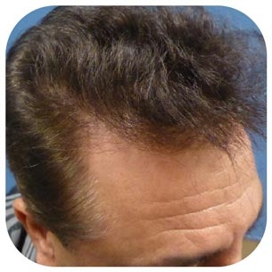 hair transplant Los Angeles