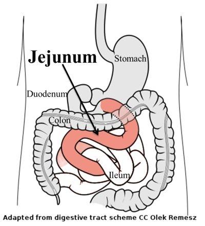 Small Intestine - Valent-McMahan Homepage