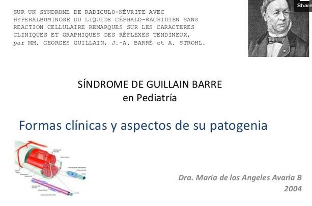 SINDROME GUILLAN BARRE