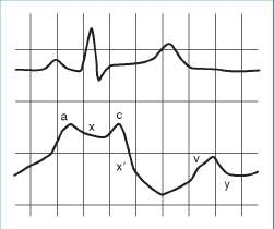 Cath Hemodynamics & Angiography Fundamentals - pedscards com