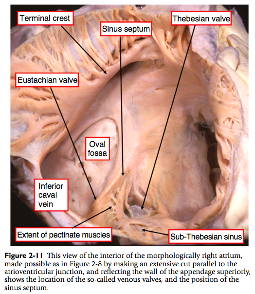 Right ventricle anatomy
