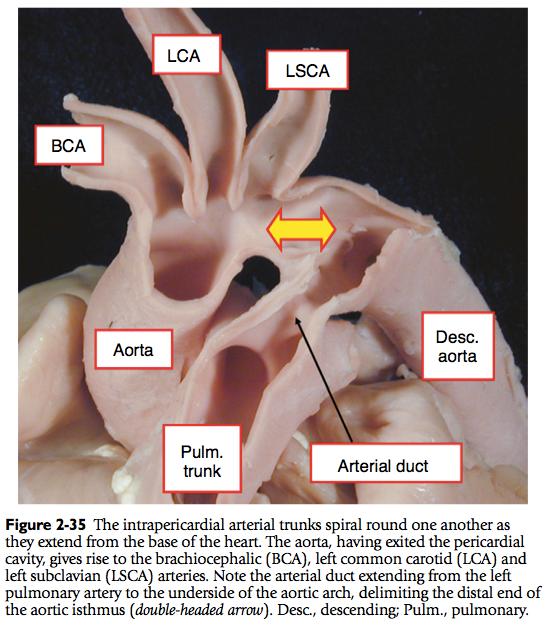 Normal Cardiac Anatomy - pedscards.com