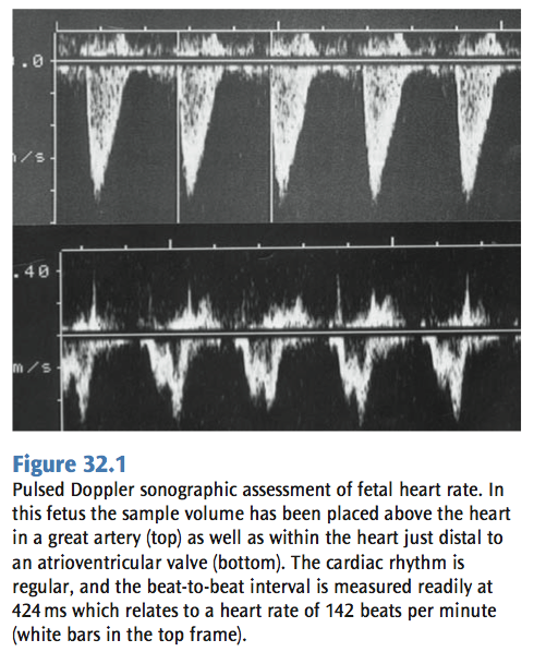 Fetal Bradycardia Yagel32 - pedscards com