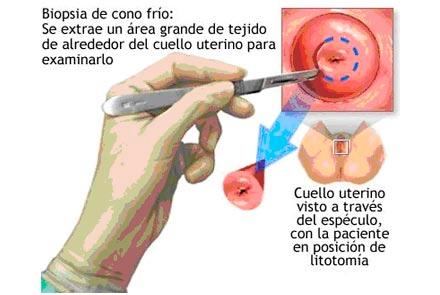 Papiloma humano en el cuello uterino imagenes