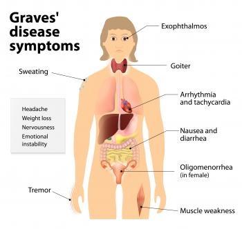 Grave S Disease Benguet State University Health Information
