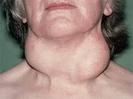 de quervain s thyroiditis symptoms)