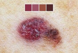 http://www.webmd.com/melanoma-skin-cancer/ss/slideshow-skin-lesions-and-cancer