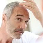 http://www.talkhealthpartnership.com/talkmenshealth/further_reading/male_pattern_baldness.php