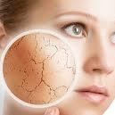 http://www.beyondmedispa.com/women/face-treatments/pigmentation-sun-damage-thread-veins/