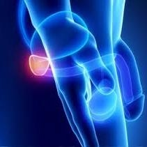 http://pasadenacyberknife.com/treatment-options/prostate-cancer