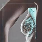 https://sites.google.com/a/sveikata.tv/medik/straipsniai1/_draft_post/mamograma.jpg
