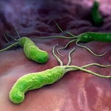 http://www.medicinenet.com/helicobacter_pylori/page3.htm