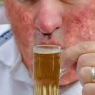 http://www.medindia.net/news/healthinfocus/alcohol-exacerbates-skin-diseases-and-psoriasis-86525-1.htm