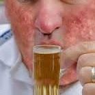 http://www.medindia.net/news/healthinfocus/alcohol-exacerbates-skin-diseases-and-psoriasis-86525-1.htm