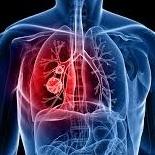 http://herb.co/2016/06/21/cannabis-saved-terminal-lung-cancer/