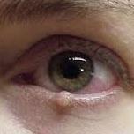 http://www.nashvillelidsurgery.com/reconstructive-surgery/eyelid-tumors/