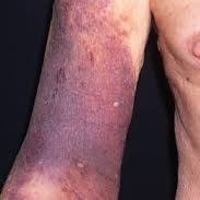 http://www.gponline.com/haematology-reversal-warfarin-treatment/haematology/article/1090298