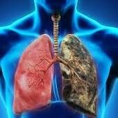 http://www.sleepwa.com.au/respiratory-diseases/