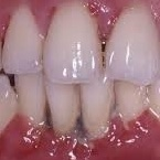 http://www.advancedcaredental.com/periodontitis-washington