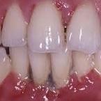 http://www.advancedcaredental.com/periodontitis-washington